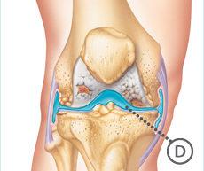 knee_osteoarthritis_synviscone_treatment